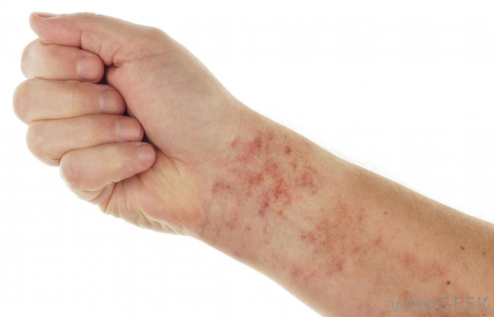 persons arm with skin irritation corefitinc